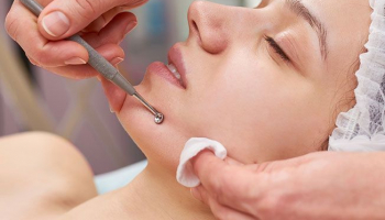 Limpieza facial con opción a microdermoabrasión, radiofrecuencia y masaje