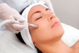 Una sesión de microdermoabrasión con punta de diamante, opción a masaje y radiofrecuencia